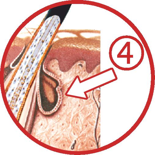 Djelovanje žlijezda lojnica
