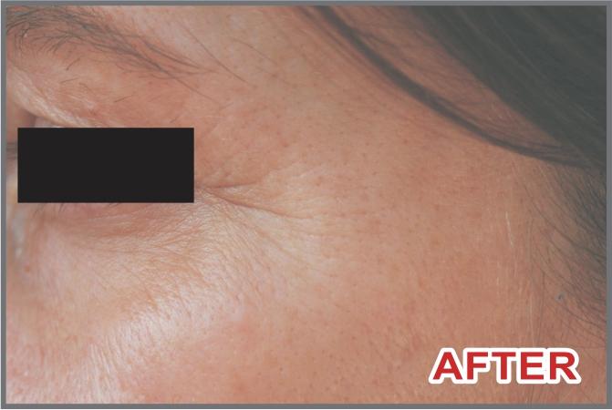skin after