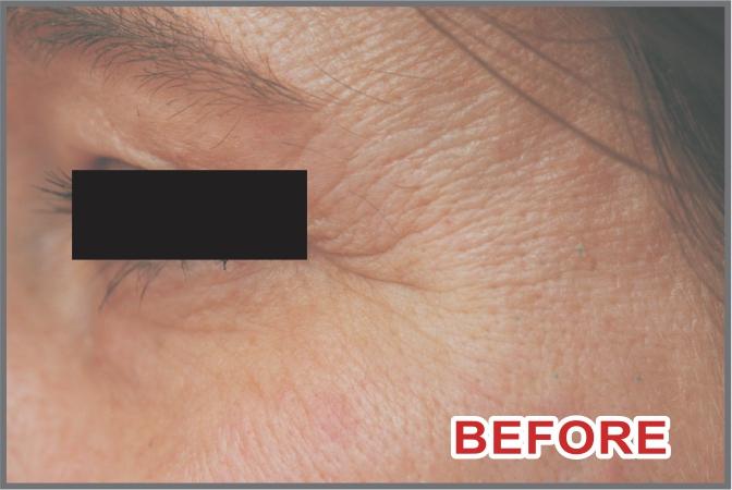 skin before